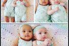 Gêmeas birraciais chamam atenção por diferença