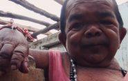 Indiano de 50 anos tem 73 centímetros de altura; família pede ajuda