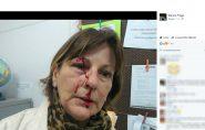 Brasil: professora é agredida por aluno de 15 anos após expulsá-lo de sala de aula