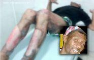 Morre homem que teve 80% do corpo queimado em Barra de São Francisco