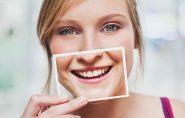 Mudar o sorriso para melhor? Sim, é possível. Conheça alguns dos procedimentos!