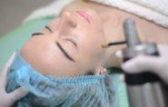 Crioterapia evita queda de cabelos durante tratamento quimioterápico
