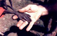 Desnutrição volta a crescer no mundo, diz ONU