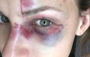 Universitária agredida nos EUA grava parte de briga com namorado; ouça